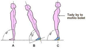 Masáže Husova - bolesti zad způsobené podpatky